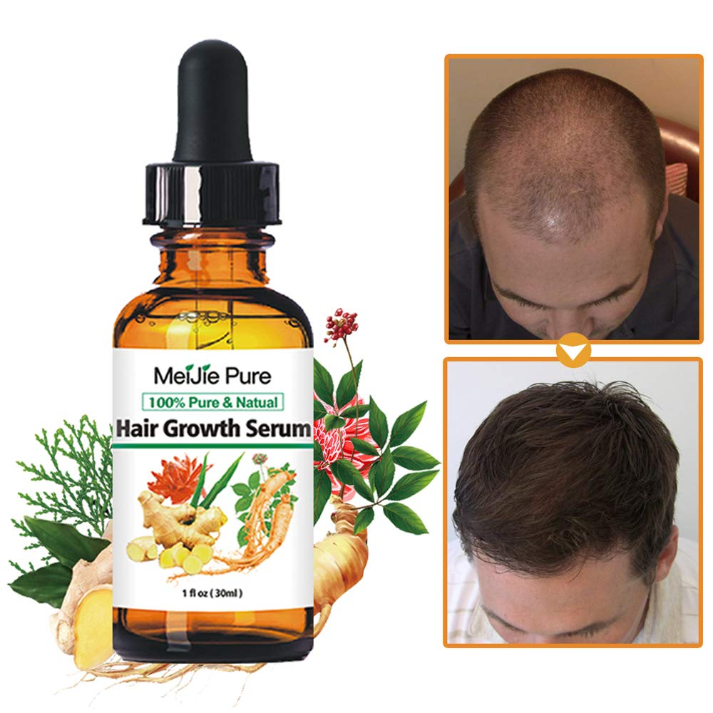 QUNGCO Hair Growth Serum